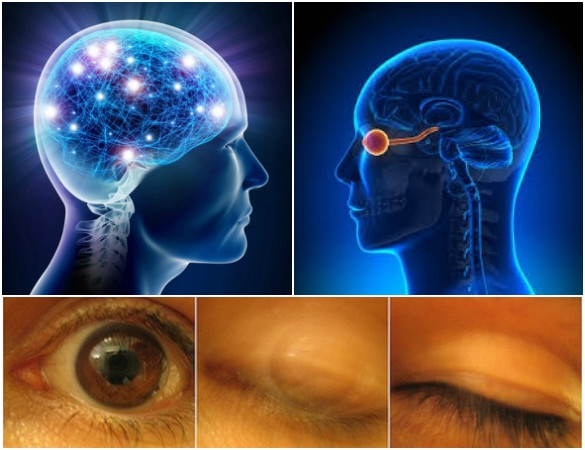 Current Biology journal: Blinking of an eye makes our brain to stabilize our vision