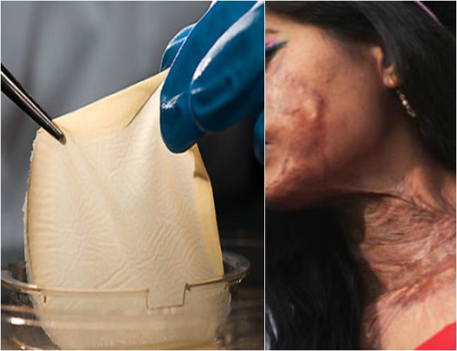 A boon for burnt patients as 3D bio-printer creates human skin