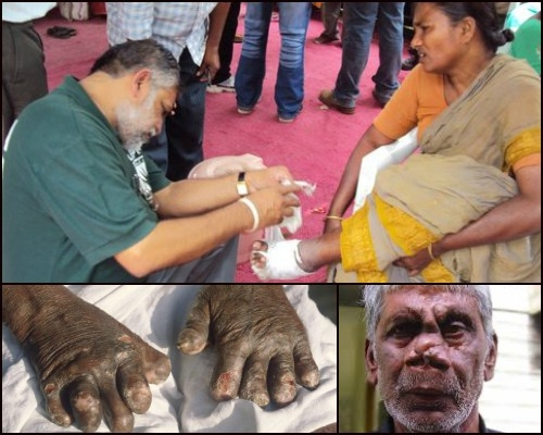 Odisha to eradicate Leprosy by 2020 by raising awareness through door to door campaigning
